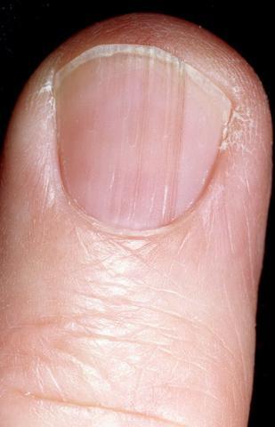 ciemne plamki na paznokciach u rąk