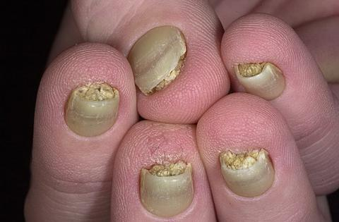 Congenita - Pachyonychia Congenita
