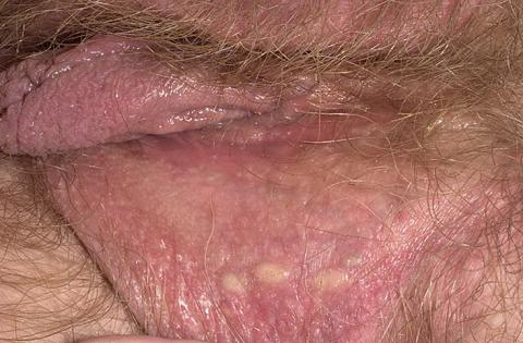 cysta wargi sromowej