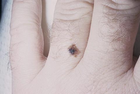 czerniak dłoni