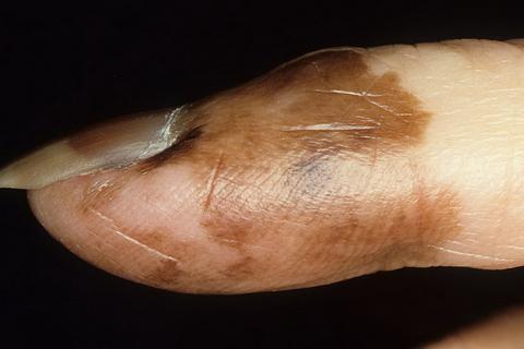 czerniak paznokcia obrazy