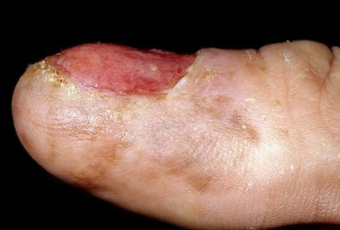 czerniak złośliwy paznokcia