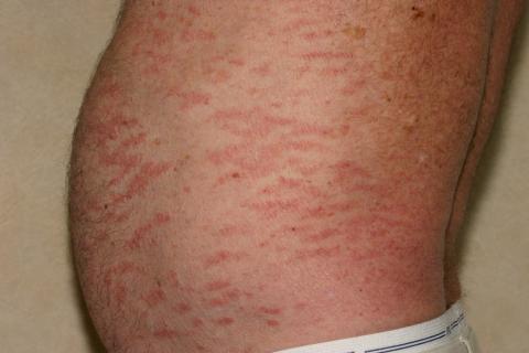 czerwona skóra u mężczyzny