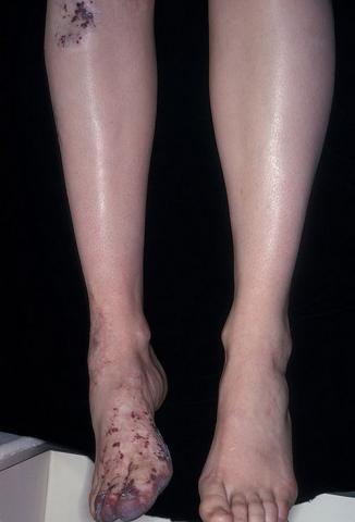czerwone krostki na nogach i stopie