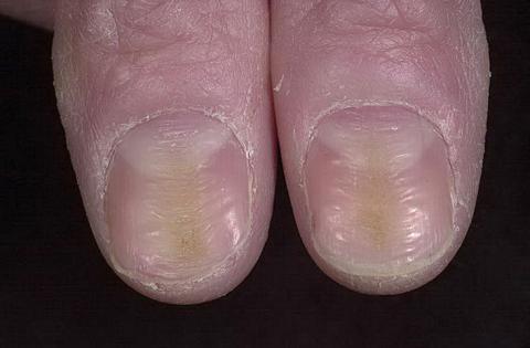 deformacja paznokci
