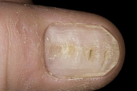 deformacja paznokcia