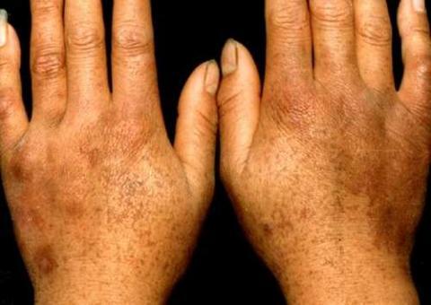 dermatopathia pigmentosa reticularis (DPR)