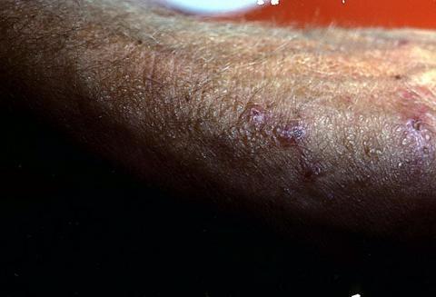 dystrofia skóry koloidalna