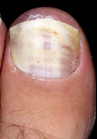 grzybica paznokcia w nodze