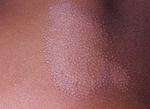 grzybica potnicowa