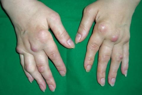 guzki reumatoidalne dłoni zdjęcia