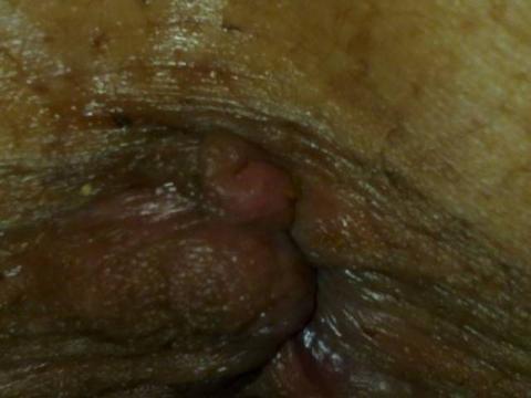 jak wyglądają hemoroidy odbytu zdjęcia