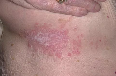 kandydoza skóry objawy