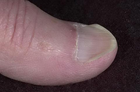 koilonychia paznokcie łyżeczkowate