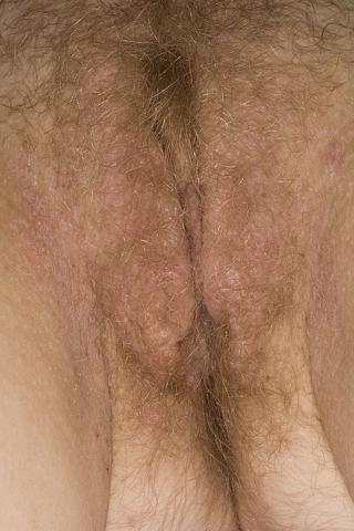 krostki na wargach sromowych