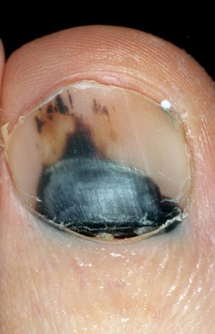 krwiak paznokcia