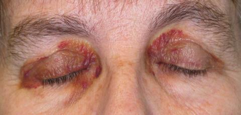 krwiaki okularowe