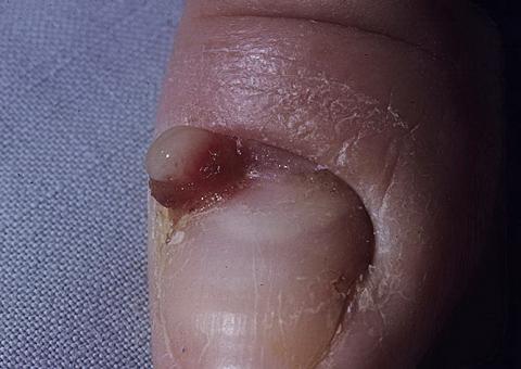lobular capillary haemangioma