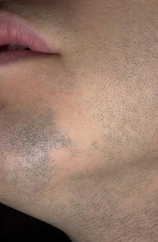 łysienie plackowate brody