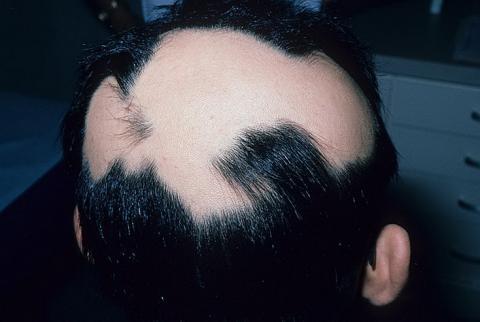 łysienie plackowate objawy
