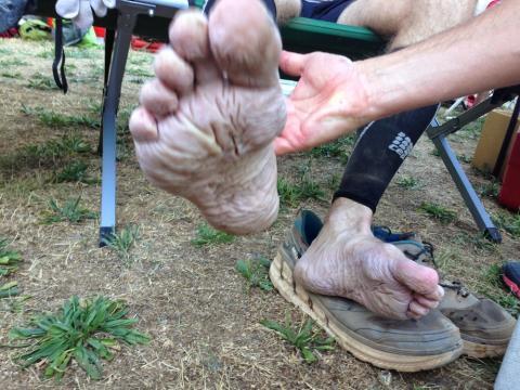 Maceracja stopy