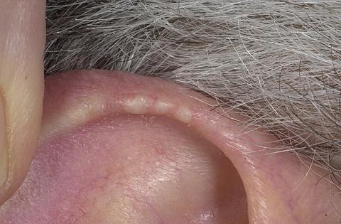 małżowina uszna guzek