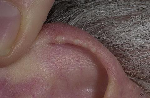małżowina uszna guzki
