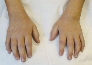 młodzieńcze idiopatyczne zapalenie stawów zdjęcia foto