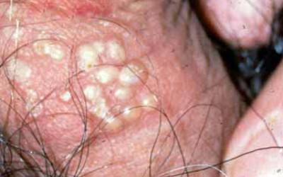 mycoplasma jak wykryć
