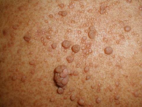 neurofibroma skin