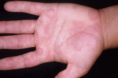 obrzęk naczynioruchowy dłoń