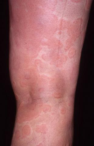 obrzęk naczynioruchowy na nodze