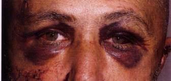 oczy szopa objaw