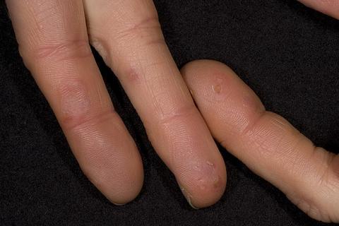 odmrożenia skóry