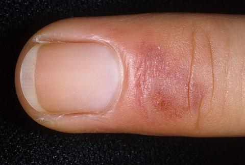 odmrożenia skóry palec