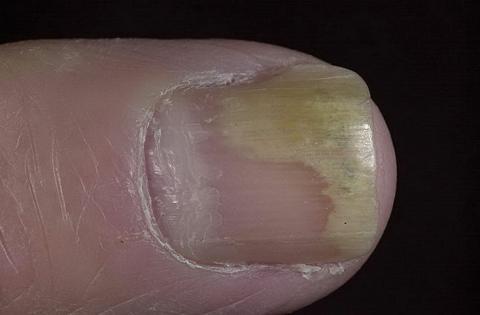 odwarstwianie paznokci