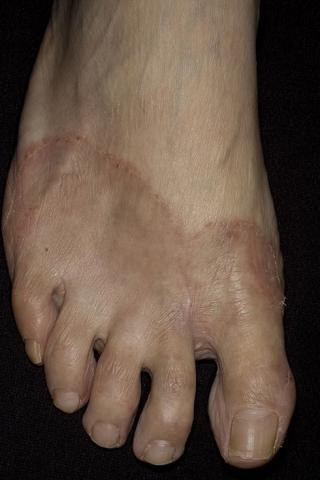 palce grzybica