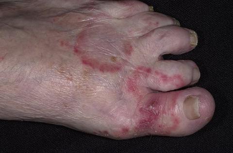 palce grzybice