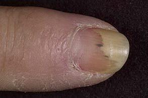 paznokcia onycholiza