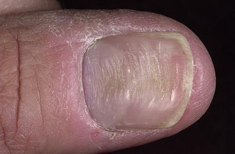 paznokcie choroby bruzdy podłużne