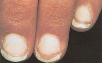 paznokcie terry'ego objawy
