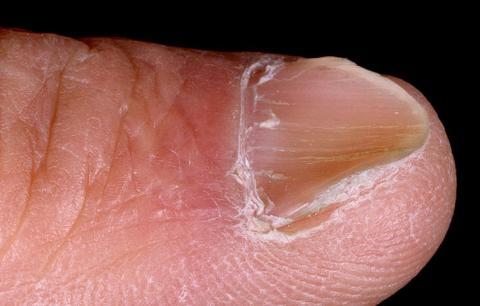 paznokieć łyżeczkowaty
