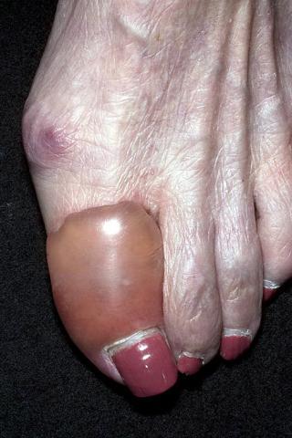 pęcherzyca palec duży