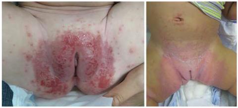 pieluszkowe zapalenie skóry