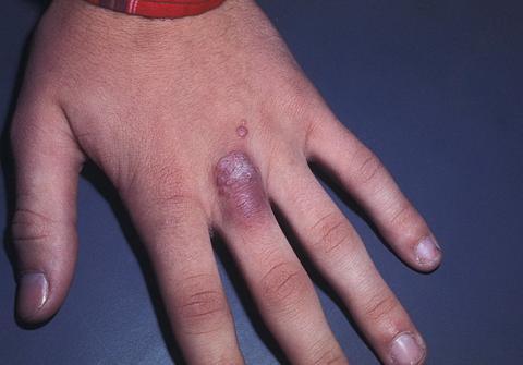prątki atypowe dłoń
