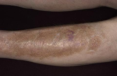 Przebarwienia pozapalne skóry