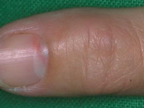 przyzwojak paznokcia