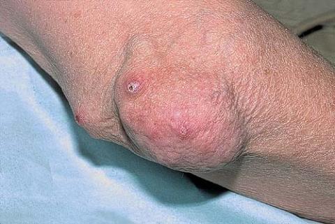 reumatoidalne zapalenie stawów objawy