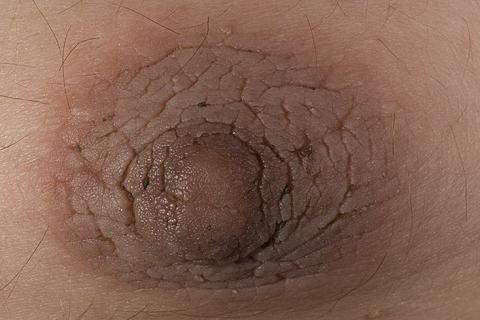 rogowacenie ciemne  choroba skóry