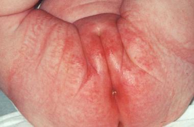 rumień pieluszkowy zdjecia choroby